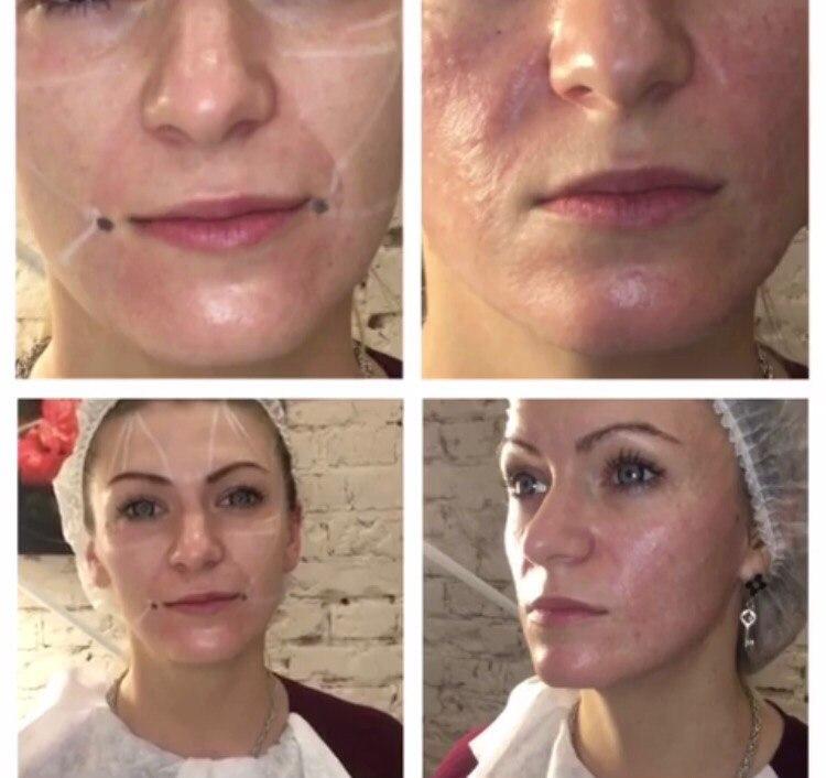 Фото до и после процедуры редермализации