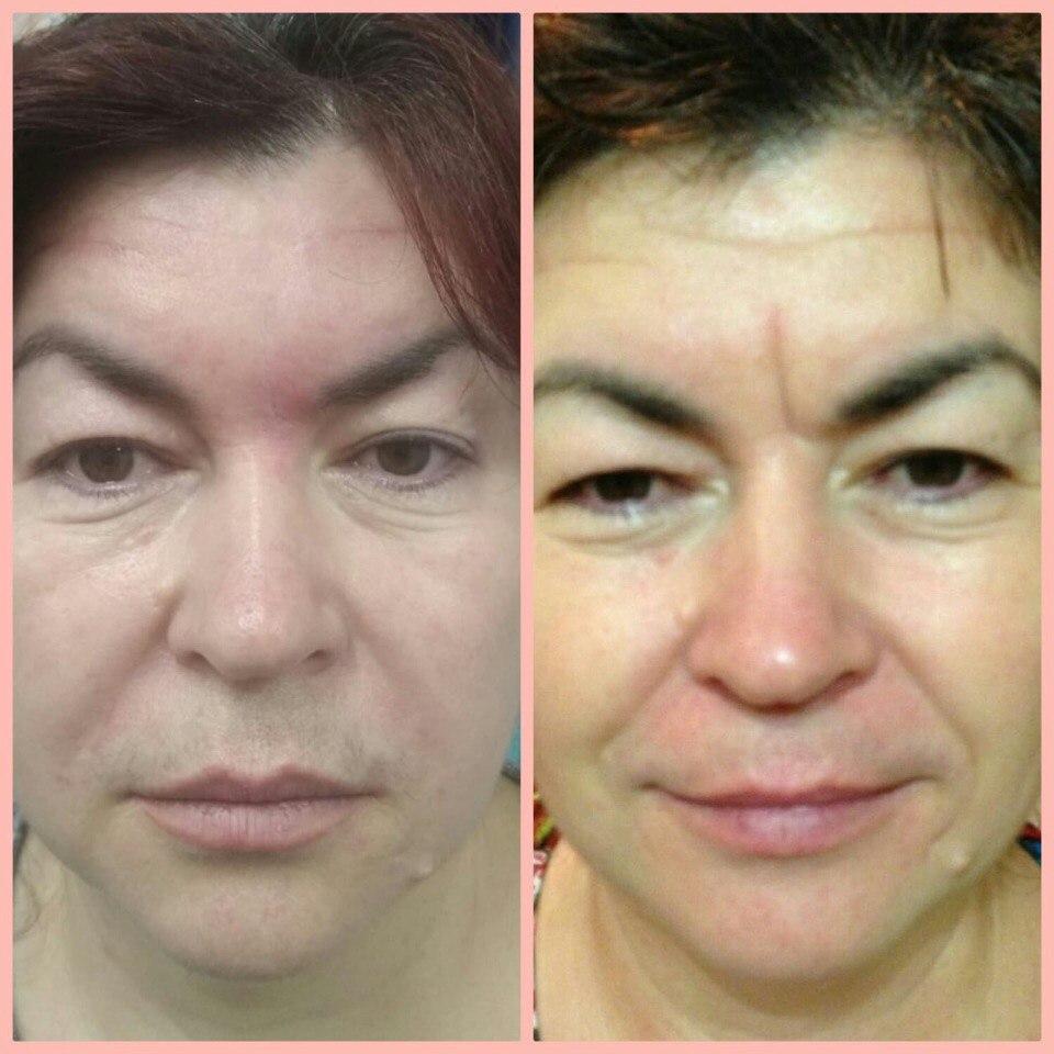 """Пациентка одной из косметологических клиник до и после применения препарата """"Курасен"""""""