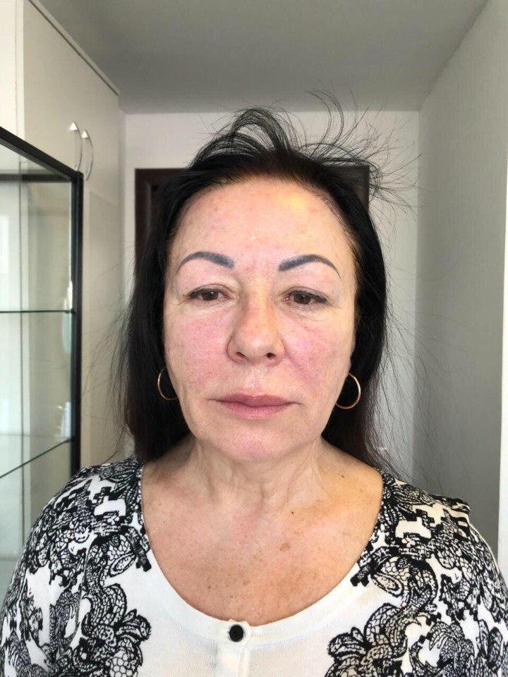 Фото пациентки после проведения процедуры SMAS-лифтинга