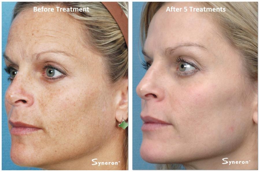 Эффект от процедуры фотоомоложения лица до и после.