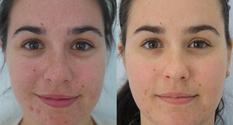 Микродермабразия лица фото до и после