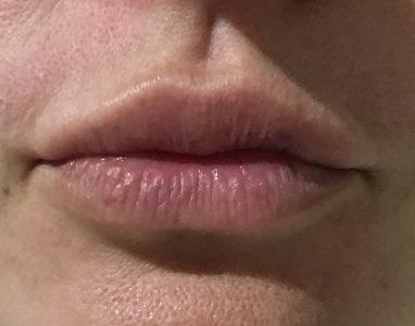 Увеличение губ филлером - личный опыт