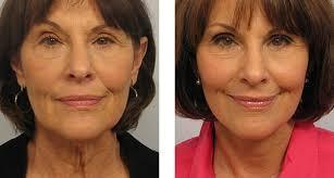 Фото до и после процедуры Альтера-терапия.