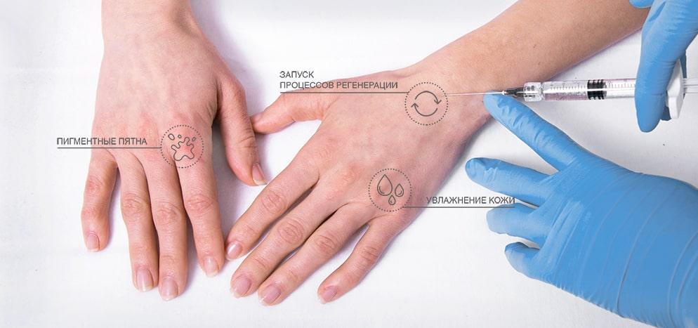 Процедура PROFHILO (ПРОФАЙЛО): препарат, результат, цена, отзывы