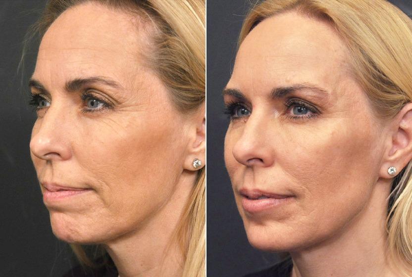 Пациент до и после проведения процедуры Профайло