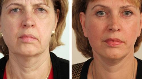 Фото до и после миостимуляции лица.