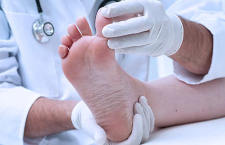Как лечить бородавки на пальцах ног