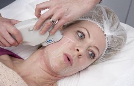 Подтяжка лица с помощью SMAS-лифтинга