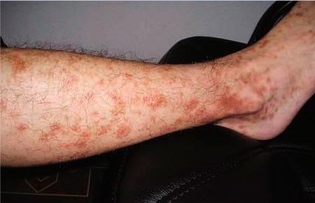 Чем опасны пигментные пятна на ногах