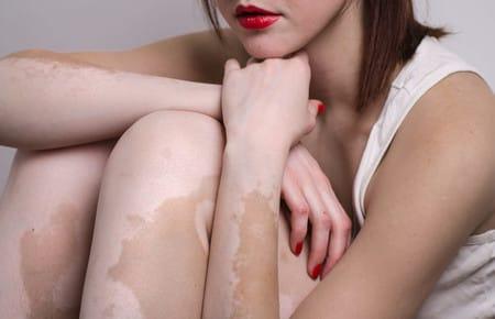 Причины и лечение белых пигментных пятен на теле