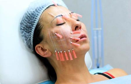 Армирование лица гиалуроновой кислотой